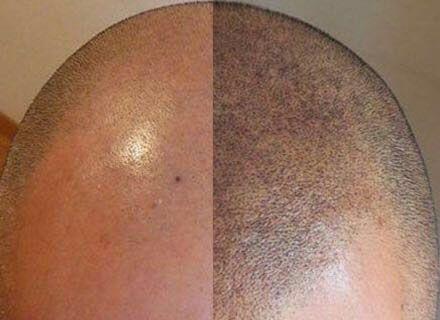 Micropigmentation du cuir chevelu en Turquie : le guide complet
